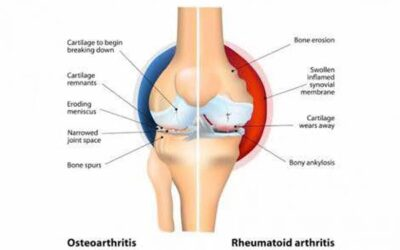 Heal Arthritis, Rheumatism and Osteoarthritis